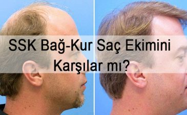 SSK Bağ-Kur Saç Ekimini Karşılar mı?