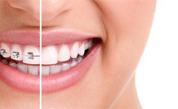 SGK Diş Telini Karşılıyor mu ?